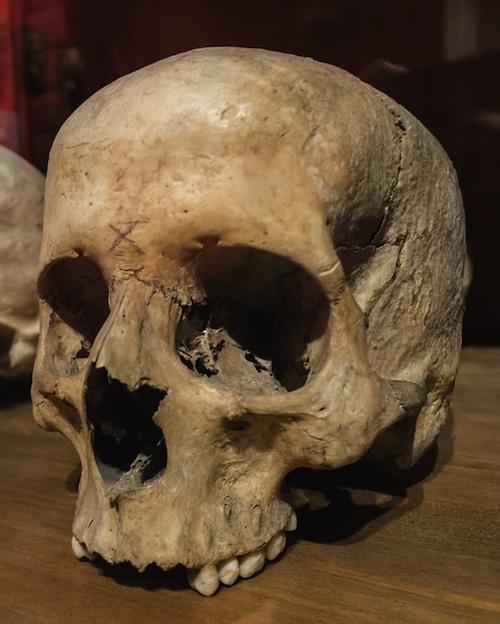 Berriola traperos de ema s encuentra en irun restos de for Muebles etxeberria